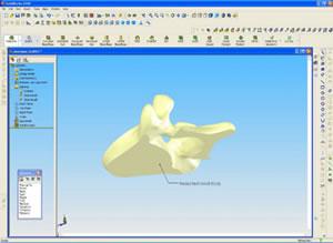 Human CAD Models Help with Medical Device Design - Digital