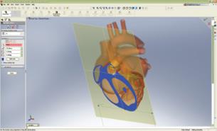 MCAD Technology Drives Medical Device Development - Digital Engineering