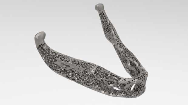 Inspire 2018 debuts functionality that enables design engineers to generate optimized lattice as well as mixed solid-lattice structures that can be exported for 3D printing readily. Shown here is a mixed solid-lattice optimization of a prosthetic human jaw. Image courtesy of Altair Engineering Inc.