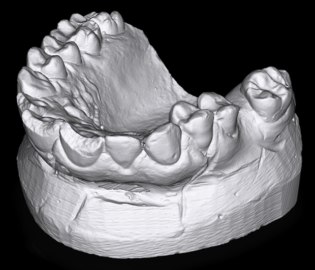 An HDI Compact C109 scanner was used to scan this image of a dental mold. Image courtesy of Polyga Inc.