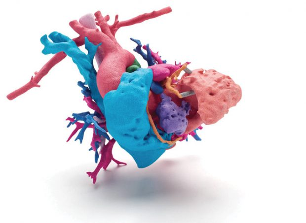 A full-color, 3d-printed model of a human heart used to enhance presurgical planning. Image courtesy of HP; data courtesy of Phoenix Children's Hospital; Heart of Jemma.