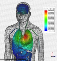 Local Specific Absorption Rate (SAR) distribution on upper side of male body model.