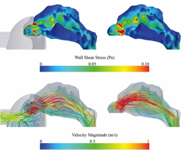 Wall Shear Stress distributions at the nasal cavity's wall (upper panel) and velocity information visualized using streamlines (lower panel). Those distributions are shown for simulations using a simplified mask (left) as well as for simulations, where the nasal cavity was truncated at the nostrils.
