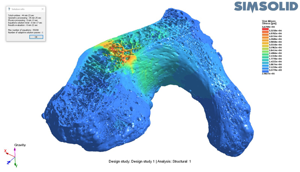 Simulation and analysis of bone structure in SIMSOLID (courtesy of SIMSOLID)